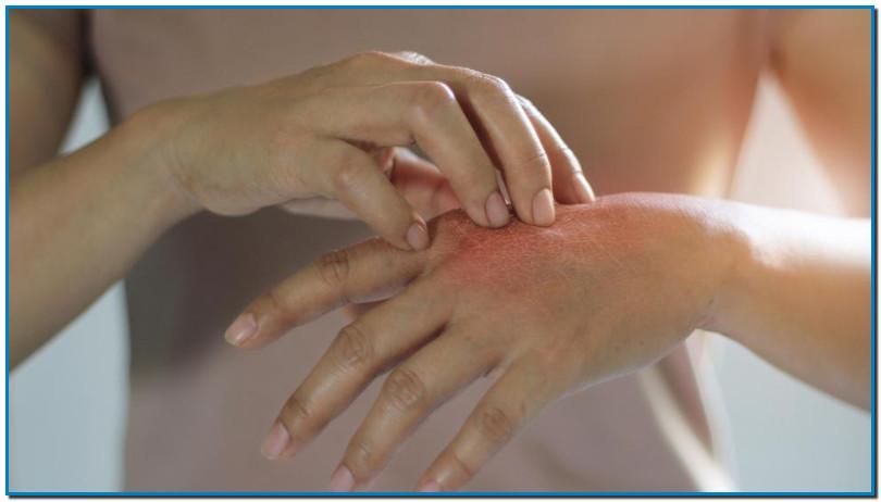 Une urticaire localisée ou généralisée Les vascularites, un symptôme plus inquiétant Face à ces symptômes, demandez un avis médical Les anti-inflammatoires sont à bannir L' infection à SARS-CoV-2 est loin d'avoir révélé tous ses mystères. Au fur et à mesure que le nombre de cas de CoVid-19 augmente, de nouveaux symptômes plutôt atypiques sont identifiés. Après la perte de goût et d'odorat, les troubles digestifs ou encore la conjonctivite, l'urticaire et les vascularites pourraient également faire partie du tableau clinique.